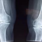 cartilagine nelle articolazioni