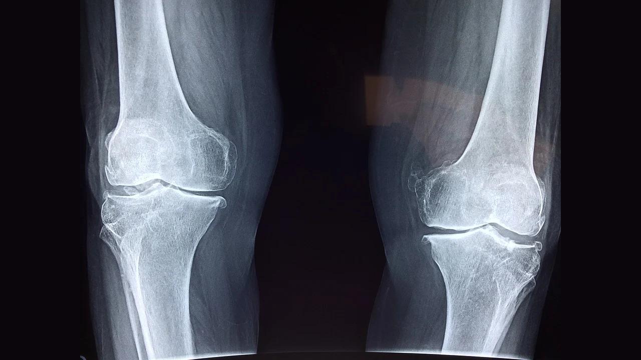 Ricercatori trovano metodo per rigenerare la cartilagine nelle articolazioni