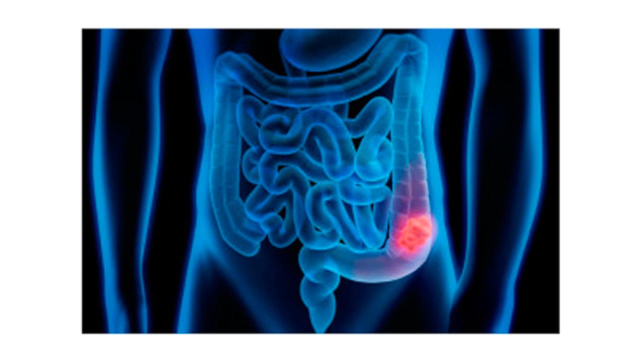 Cancro del colon-retto: individuato un nuovo possibile bersaglio terapeutico
