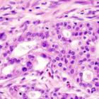 tumore del pancreas