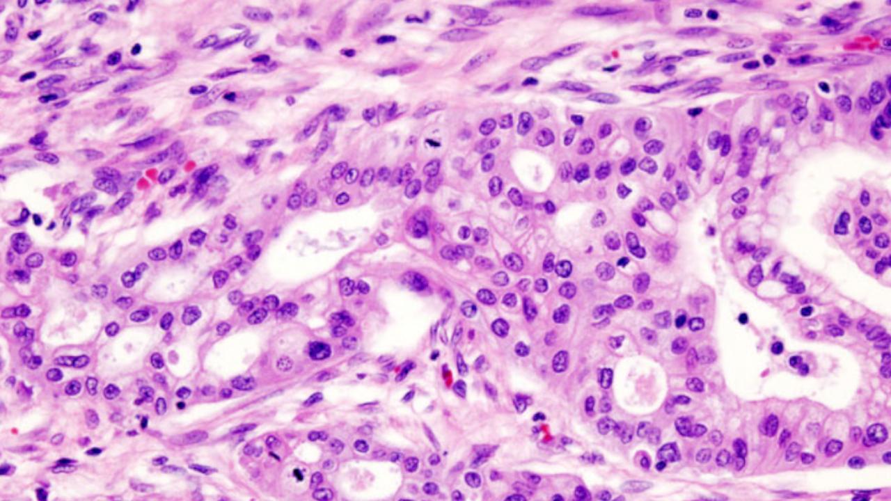 Tumore del pancreas: sempre più informazioni sui diversi tipi di cellule che lo compongono